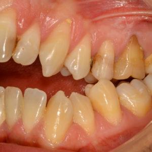 Paziente adulto, grave morso aperto, trattamento combinato ortodontico – chirurgico